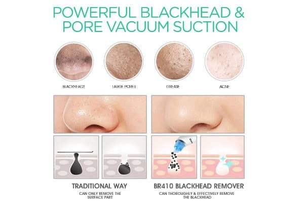 Voyor BR410 como funciona la succión de poros
